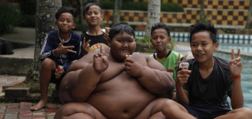 Former 'world's fattest kid' Loses 182 pounds